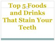 Top 5 Foods and Drinks That Stain Your Teeth
