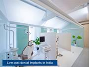 Low cost dental implants in India - Scientific Dental Clinic
