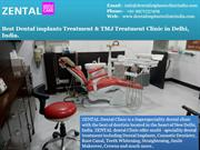 Dental Implant Clinic in South Delhi