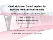 Dental Implant Quick Guide