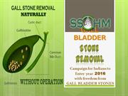 GALL BLADDER STONE REMOVAL
