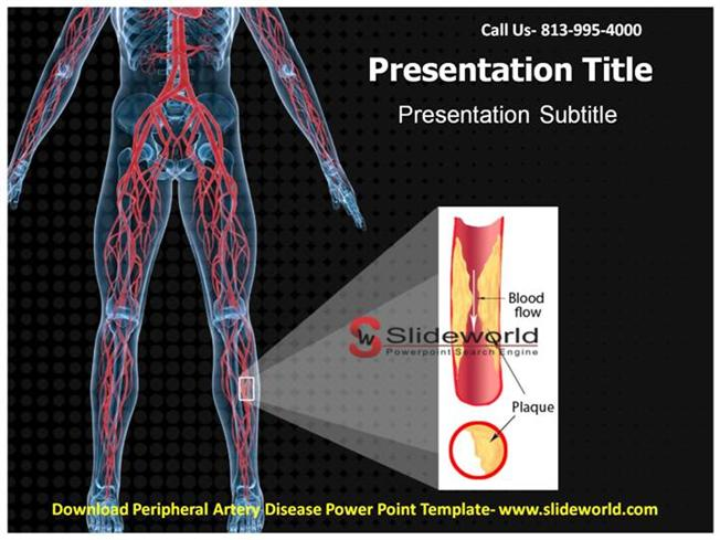 peripheral artery disease powerpoint template |authorstream, Powerpoint templates