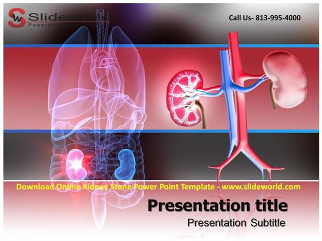 download online kidney stone powerpoint template authorstream