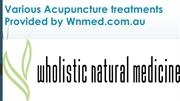 Get an Acupuncture treatment for back pain