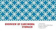 Overview of Carcinoma stomach