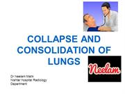 collapse and consolidation lungs