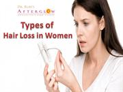 Types of Female Pattern Hair Loss