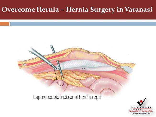 Get Hernia Surgery in Varanasi to Overcome Hernia |authorSTREAM