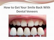 How to Get Your Smile Back With Dental Veneers