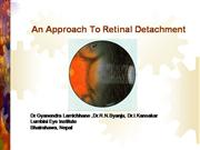 Retinal Detachment (Investigation