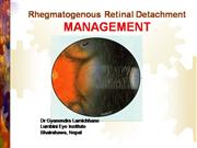 Rhegmatogenous Retinal Detachment (Manag