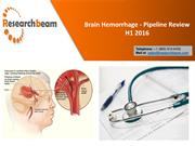 Why Should You Care About Brain Hemorrhage?