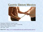 Gastric Sleeve Mexico - Best Service weight Loss