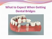 What to Expect When Getting Dental Bridges