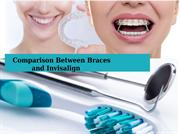 Comparison Between Braces and Invisalign