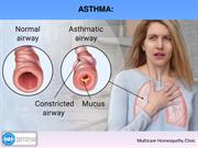 What is Asthma  How Can Asthma Be Prevented