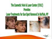 The Cosmetic Vein & Laser Center Provides Laser Treatments