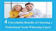 4 Unavoidable Benefits of Choosing a Professional Teeth Whitening
