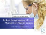 Reduce the Appearance of Scars through Scar Revision Surgery