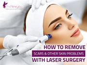 How to Remove Scars and Other Skin Problems with Laser Surgery