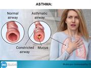 What is Asthma  How Can Asthma Be Prevented 1
