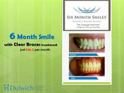6 Month Smile with Clear Braces Treatment Just £46.2 per Month