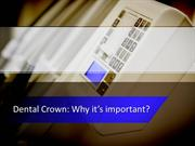 Dental Crown Why it's important?