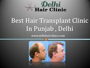 Get natural hair with hair transplant clinic in Punjab,Delh