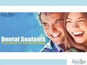 Dentists in Newmarket - Dental Sealants & How It Works - Ontario - Can