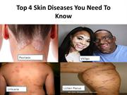 Top 4 Skin Diseases You Need To Know.