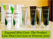 Exposed Skin Care- The Product Line That Can Cure or Prevent Acne