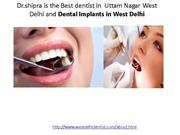 Dental Implants in West Delhi,Best dentist in West Delhi,Dental Treatm