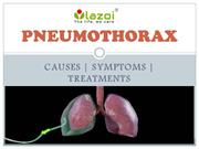 Pneumothorax : causes, symptoms, diagnosis and treatment