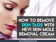 How_to_Remove_Skin_Tags_With_Nevi_Skin_Mole_Removal_Cream