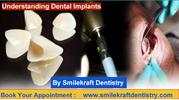 Best Dentist in Pune, Top Dentist in Pune - Smilekraft Dentistry