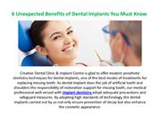 6 Unexpected Benefits of Dental Implants You Must Know