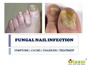 Fungal Nail Infection: causes, symptoms, diagnosis and treatment