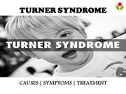 Turner syndrome : causes, symptoms and treatment