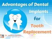 Advantages of Dental Implants for Tooth Replacement