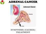 An overview of the adrenal cancer: Symptoms, causes and more