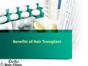 Benefits of doing Hair transplant