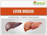 Liver Failure Causes, Symptoms, Treatments, Tests & More