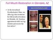 Full Mouth Restoration in Glendale, AZ