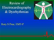 Dysrhythmia Review