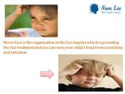 Get complete Rid of your Head Lice at NeverLice