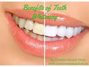 Benefit of Teeth whitening Treatment