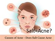 Causes of Acne - Does Salt Cause Acne