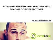 Why Hair Transplant Surgery has become Cost - Effective?