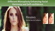 Different Rhinoplasty Enhancing Facial Harmony and Self-confidence