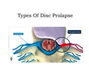 Types of Prolapsed Disc - AyurMana Review